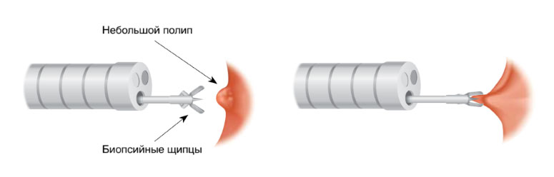 колоноскопия с биопсией