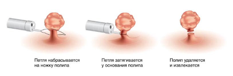 удаление полипов колоноскопия
