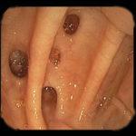 дивертикулы в кишечнике обнаруженные при колоноскопии