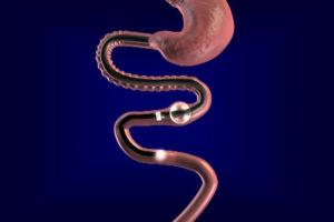 трубка тубус в кишечнике