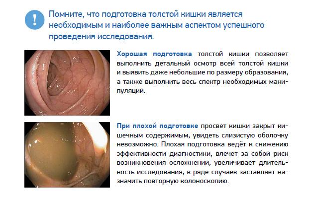 подготовка толстой кишки к эндоскопии