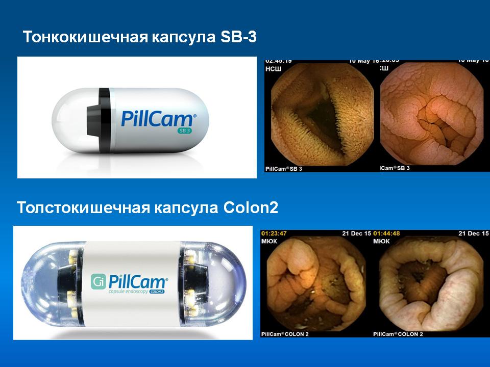 обследование кишечника капсулой