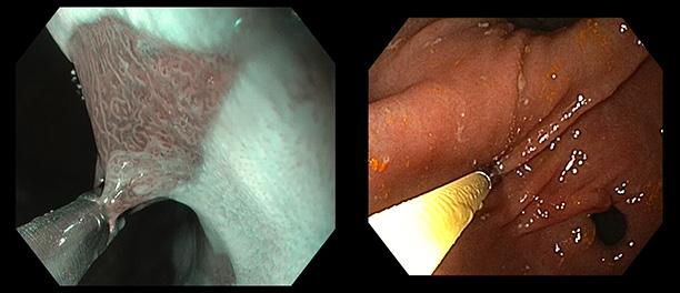 гастроскопия с биопсией екатерина иванова